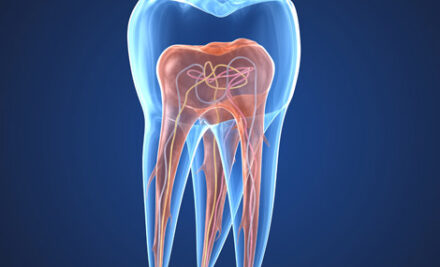 Todo lo que no sabías sobre la endodoncia.